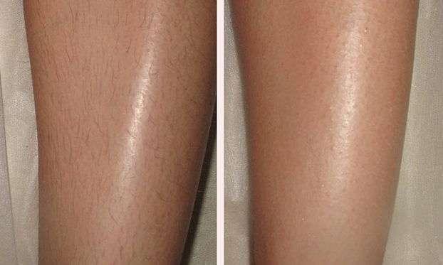 Шугаринг фото до и после на ногах