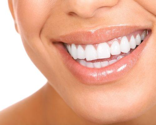 Имплантация зубов – путь к красивой улыбке